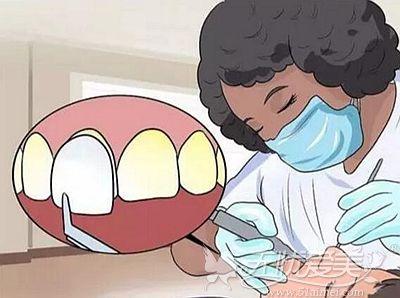 牙釉质受损后的修复方法