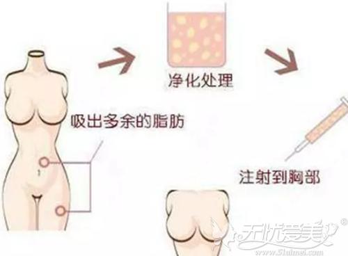 自体脂肪丰胸过程