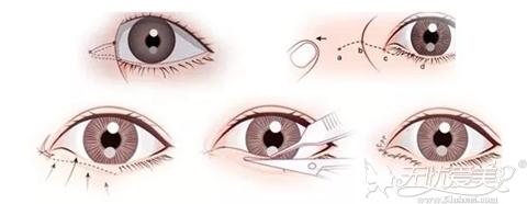 开眼角手术过程
