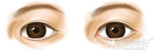 开内眼角手术效果对比