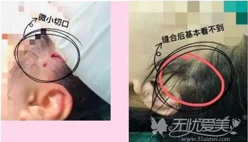 微拉美手术切口