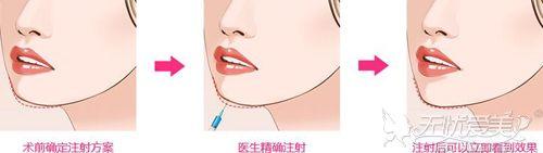 玻尿酸丰下巴前后对比效果