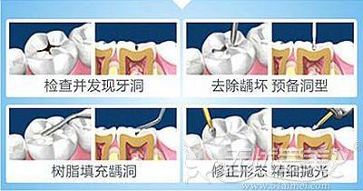 树脂补牙的过程解析