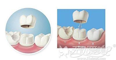 牙冠修复的材料种类