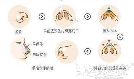 鼻综合手术隆鼻过程