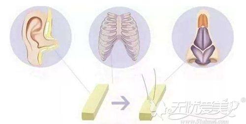 鼻综合手术用到的软骨材料