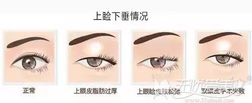 上睑下垂眼睛提肌无力的几种情况