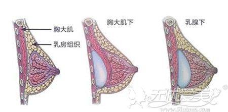 隆胸手术的层次