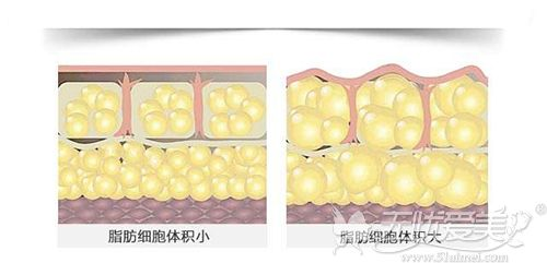 脂肪细胞量大造成肥胖