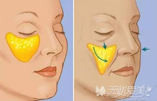 除皱手术会导致苹果肌下垂