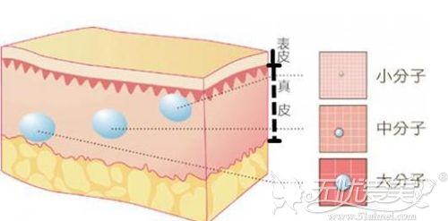 玻尿酸注射的层次