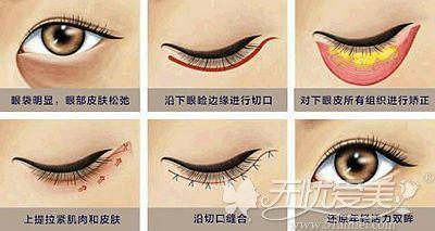 外切去眼袋的手术原理