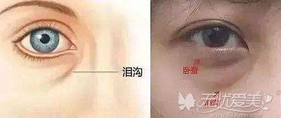做外切去眼袋手术后出现泪沟的原因