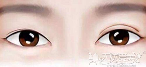 双眼皮术后左右不对称