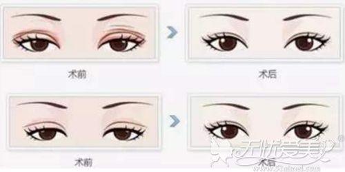 双眼皮失败修复效果