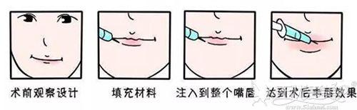 玻尿酸丰唇过程原理