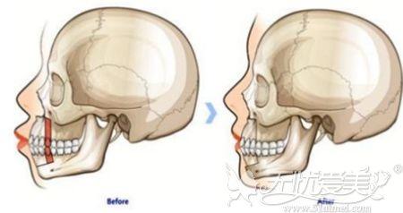 上下颚都有问题需要做正颌手术