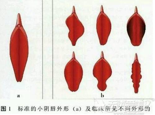 阴唇不规则的类型