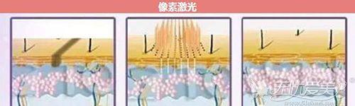 像束激光祛斑原理