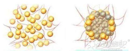 正常的脂肪注射和脂肪过多的对比