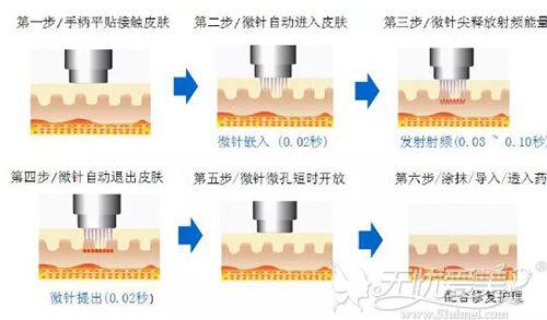 射频微针的治疗过程