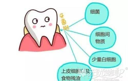 牙菌斑的危害