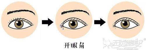 开眼角修复手术的过程