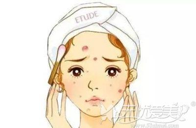 经常戴口罩造成的皮肤问题