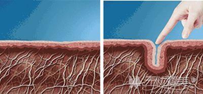 面部胶原蛋白流失的结果