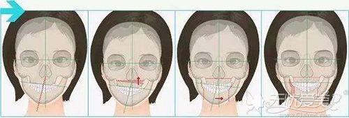 歪脸的手术方法