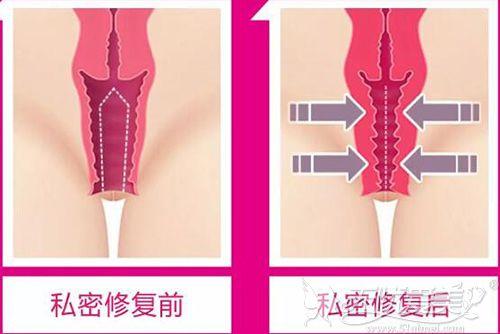 阴道紧缩术前后对比