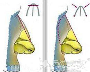 驼峰鼻的矫正方法