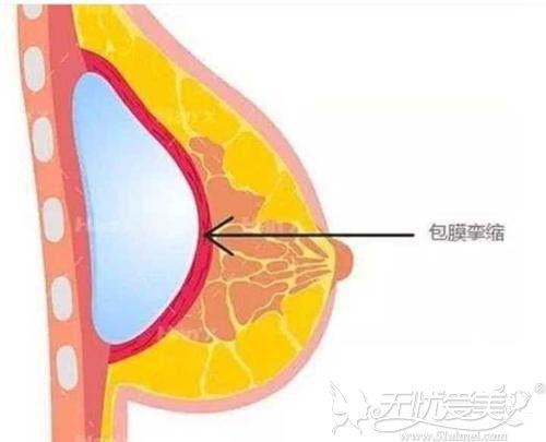假体隆胸手术包膜挛缩的原理