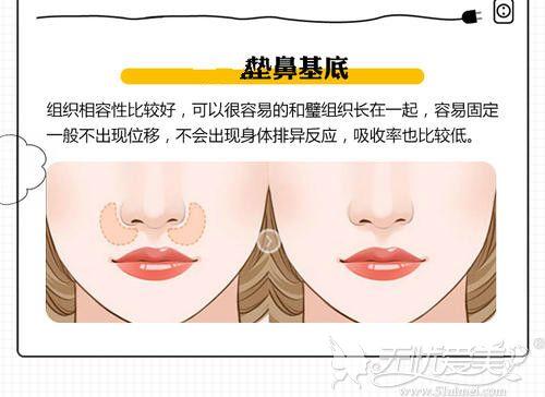 垫鼻基底的位置