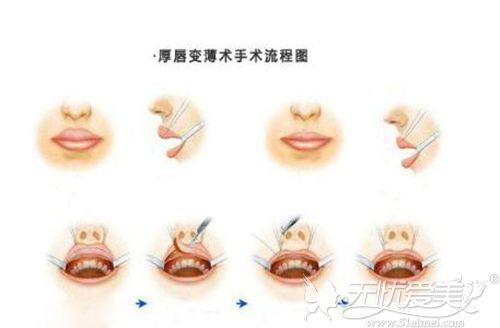 厚唇改薄术过程
