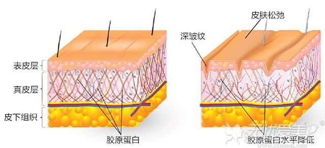 热拉提作用在真皮层