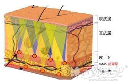 热拉提作用在筋膜层