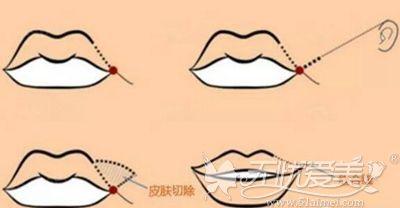 嘴角上扬手术内切看不出疤痕