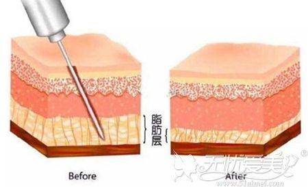 吸脂手术的前后脂肪量对比