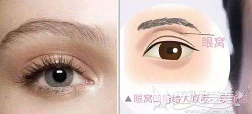 深眼窝和眼窝凹陷的区别