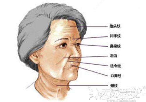 面部皱纹问题