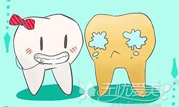 牙科做冷光美白的优势