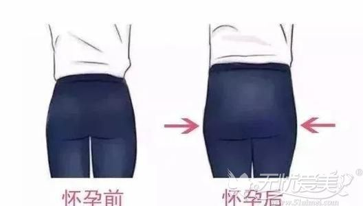 四方的屁股俗称妈妈臀