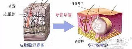 粉瘤形成的原理和症状