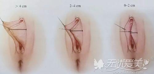 肥大的小阴唇类型
