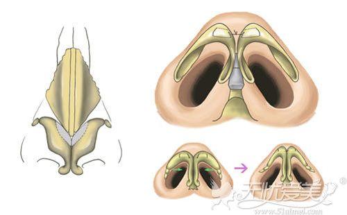 蒜头鼻手术原理