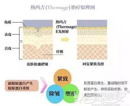 热玛吉祛颈纹原理