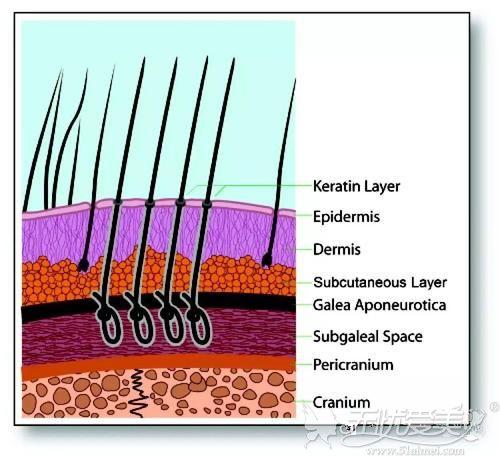 人工纤维毛发移植原理