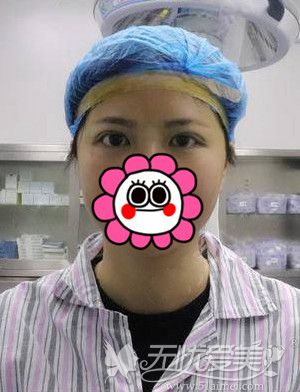 天生大小眼做双眼皮手术即刻效果