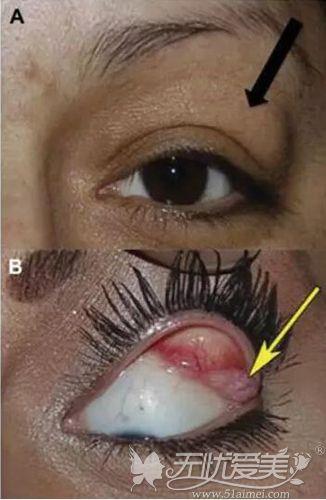 泪腺脱垂的位置